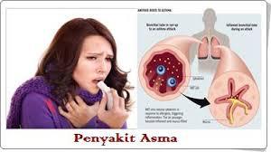 paru paru asma