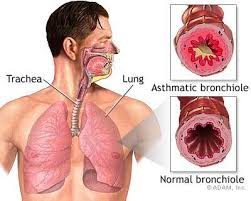 Image Apa Yang Menyebabkan Penyakit Paru Paru Terjadi
