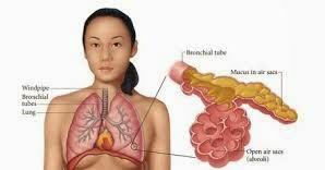 Mengobati Penyakit Paru Paru Dengan Bahan Herbal